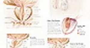 Understanding the Prostate Paper Poster